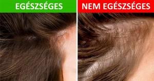8 dolog, amit a hajad elárulhat az egészségedről